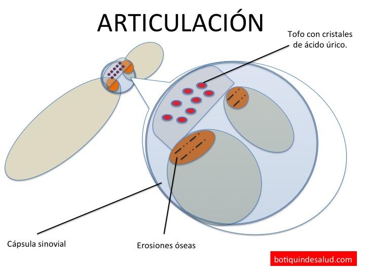 remedios naturales para controlar acido urico medicamentos para el acido urico sin receta medicamento como eliminar el acido urico en el cuerpo humano
